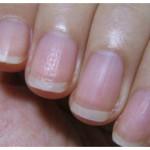 爪が「ボコボコ」は危険な状態!?爪が教えてくれる健康状態とは?