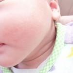 りんご病かも!?赤ちゃん(4ヶ月)でもりんご病に感染するの?症状と治療法は?