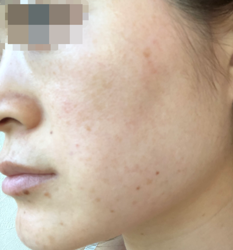 before-treatment (left)