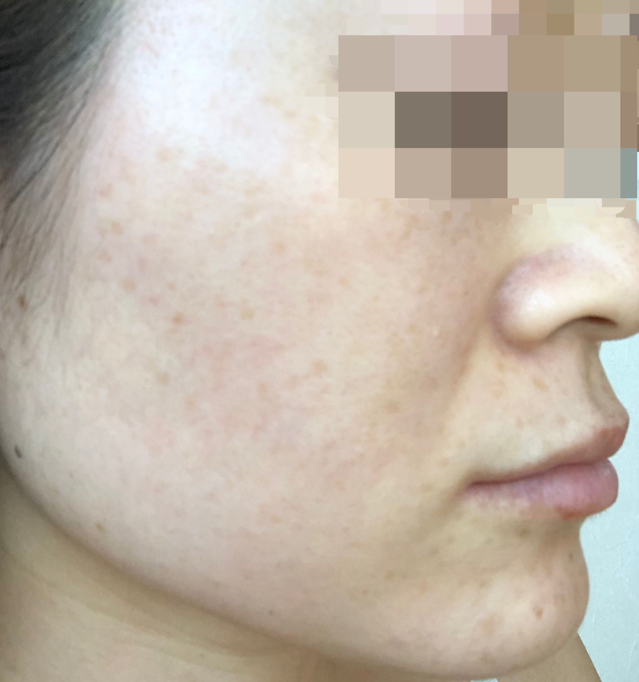 Before treatment (right)